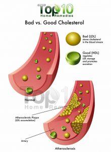 cholestrol-700