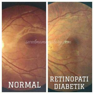 retinopati diabetik, saraf mata, rosak mata, diabetic retinopathy, sakit mata, saraf rosak, saraf diabetes, pembuluh darah pecah, darah pecah