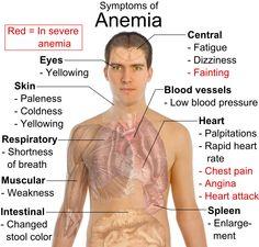 tanda-tanda-anemia