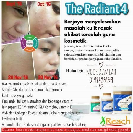 breakout skin, kulit breakout, salah produk, repair skin