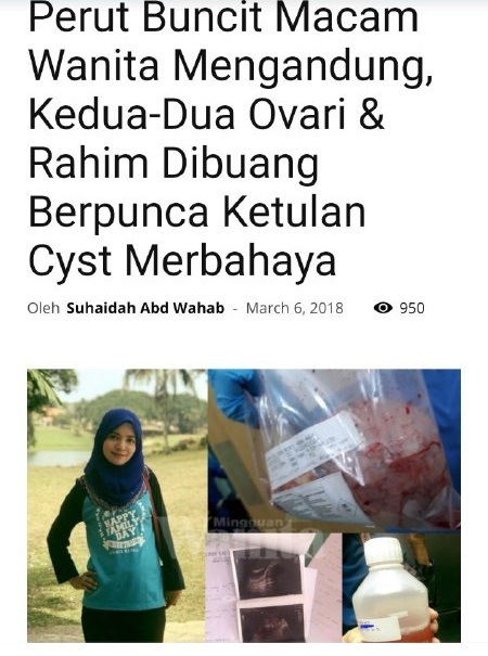 kecutkan cyst